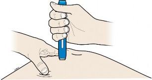 ami nem lehetséges a vállízület artrózisával a gyenge izmok fájják az ízületeket